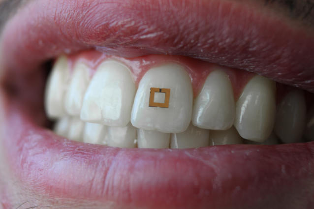 tooth wearable tracks your diet